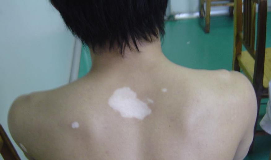 不同部位的白斑各有什么症状