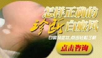 手部白癜风与手癣怎么区分